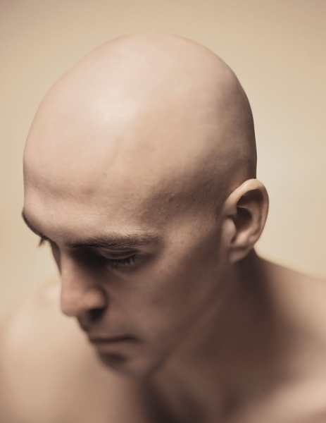 male pattern balding treatments